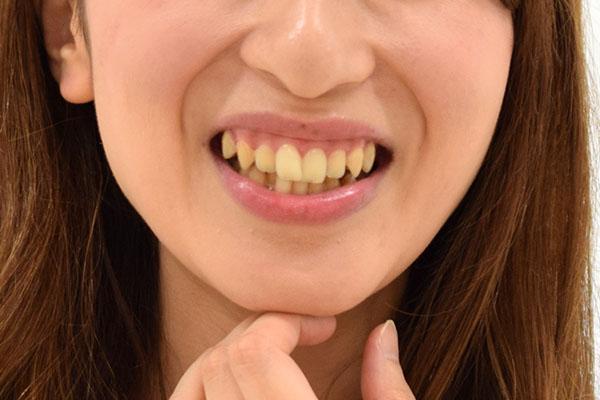 歯の変色が気になる